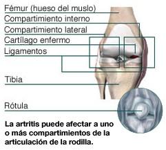 La artritis puede afectar  a uno o más compartimientos  de la articulación de la rodilla.