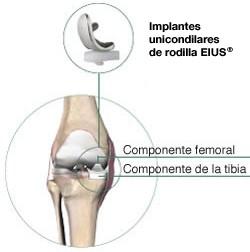 Implantes unicondilares de rodilla EIUS®