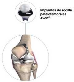 Implantes  de rodilla patelofemorales Avon®
