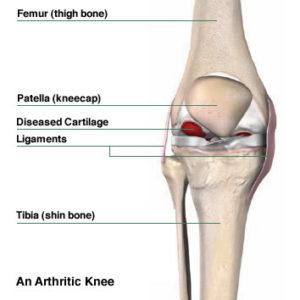 orthopedist in Brooklyn