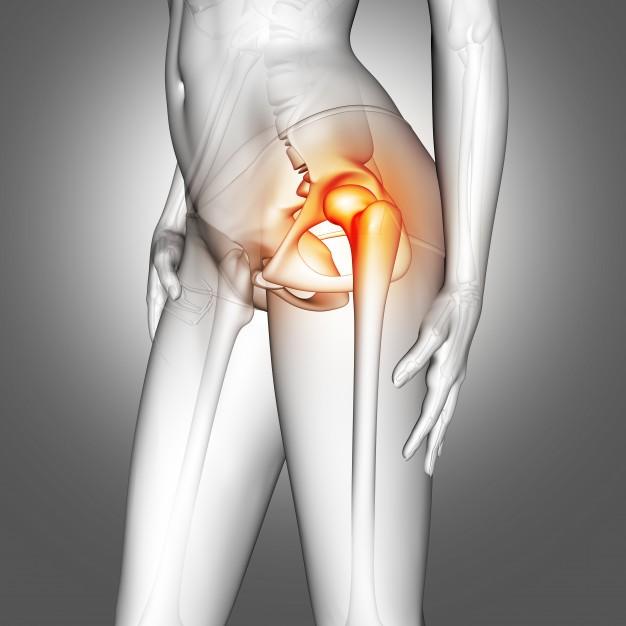 X-Ray of hip implants
