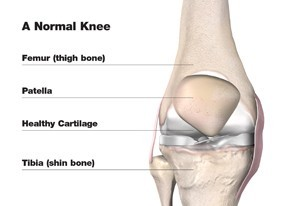 Knee Replacement Options on Long Island